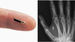 micro chip implant to human body